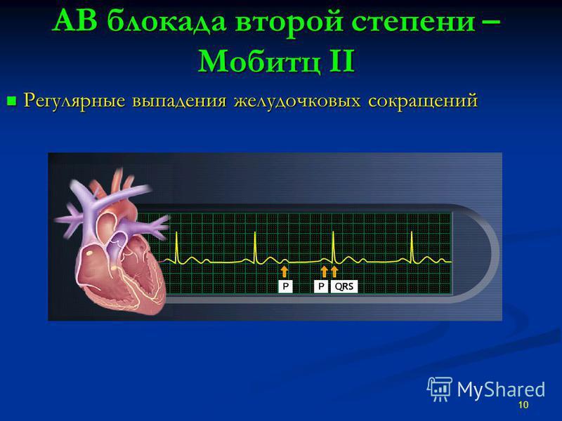 АВ блокада второй степени – Мобитц II Регулярные выпадения желудочковых сокращений Регулярные выпадения желудочковых сокращений 10