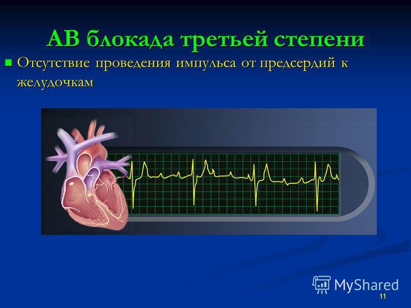 АВ блокада третьей степени Отсутствие проведения импульса от предсердий к желудочкам Отсутствие проведения импульса от предсердий к желудочкам 11