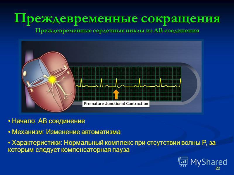 Преждевременные сокращения Преждевременные сердечные циклы из АВ соединения 22 Начало: АВ соединение Механизм: Изменение автоматизма Характеристики: Нормальный комплекс при отсутствии волны P, за которым следует компенсаторная пауза