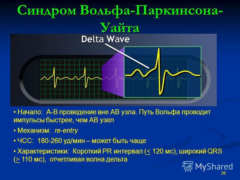 Синдром Вольфа-Паркинсона- Уайта 28 Начало: А-В проведение вне АВ узла. Путь Вольфа проводит импульсы быстрее, чем АВ узел Механизм: re-entry ЧСС: 180-260 уд/мин – может быть чаще Характеристики: Короткий PR интервал ( 110 мс), отчетливая волна дельт