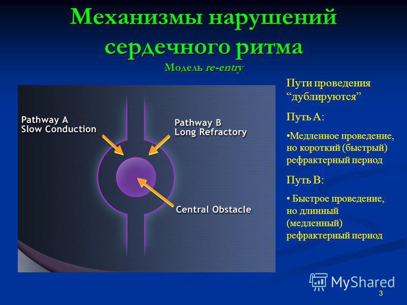 Механизмы нарушений сердечного ритма Модель re-entry 3 Пути проведения дублируются Путь A: Медленное проведение, но короткий (быстрый) рефрактерный период Путь B: Быстрое проведение, но длинный (медленный) рефрактерный период
