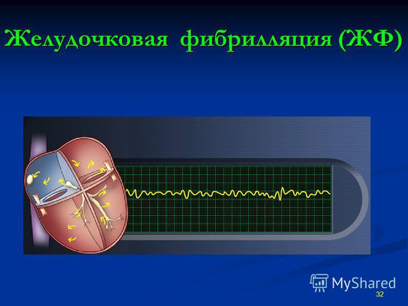 Желудочковая фибрилляция (ЖФ) 32