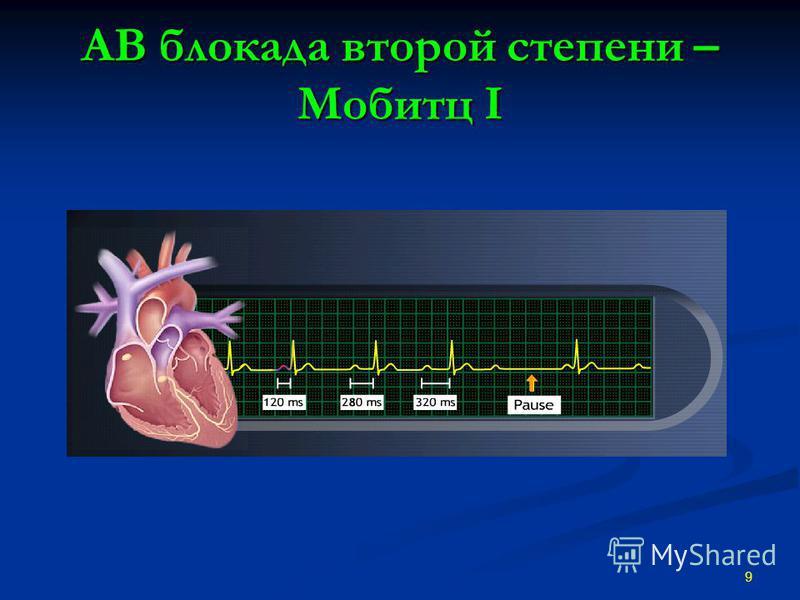 АВ блокада второй степени – Мобитц I 9