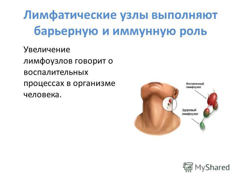 Лимфатические узлы выполняют барьерную и иммунную роль Увеличение лимфоузлов говорит о воспалительных процессах в организме человека.
