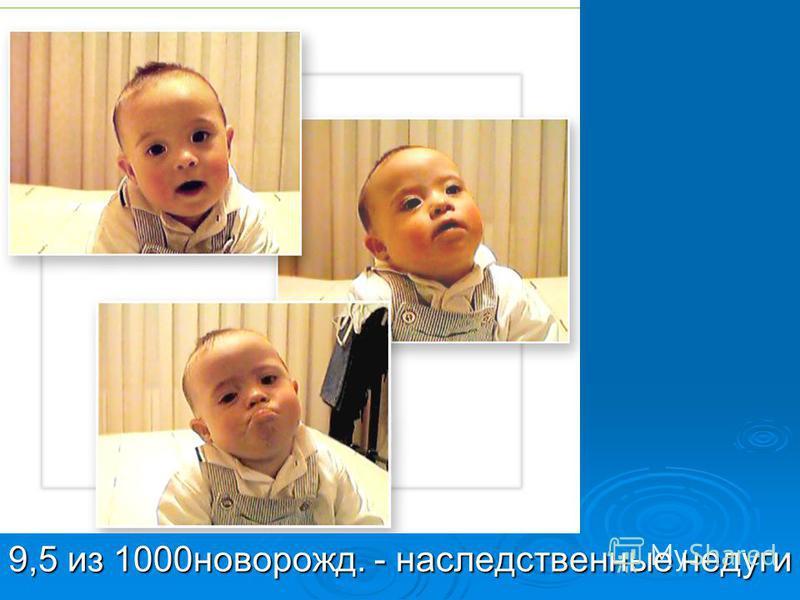 9,5 из 1000 новорожд. - наследственные недуги
