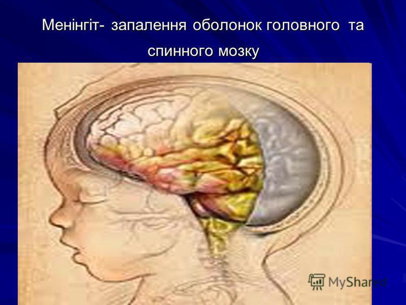 Менінгіт- запалення оболонок головного та спинного мозку