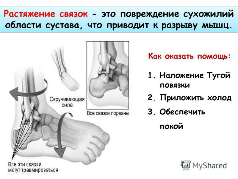 Растяжение связок - это повреждение сухожилий области сустава, что приводит к разрыву мышц. Как оказать помощь: 1. Наложение Тугой повязки 2. Приложить холод 3. Обеспечить покой