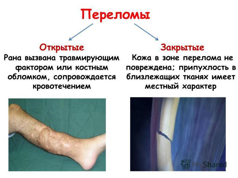 Открытые Рана вызвана травмирующим фактором или костным обломком, сопровождается кровотечением Закрытые Кожа в зоне перелома не повреждена; припухлость в близлежащих тканях имеет местный характер Переломы