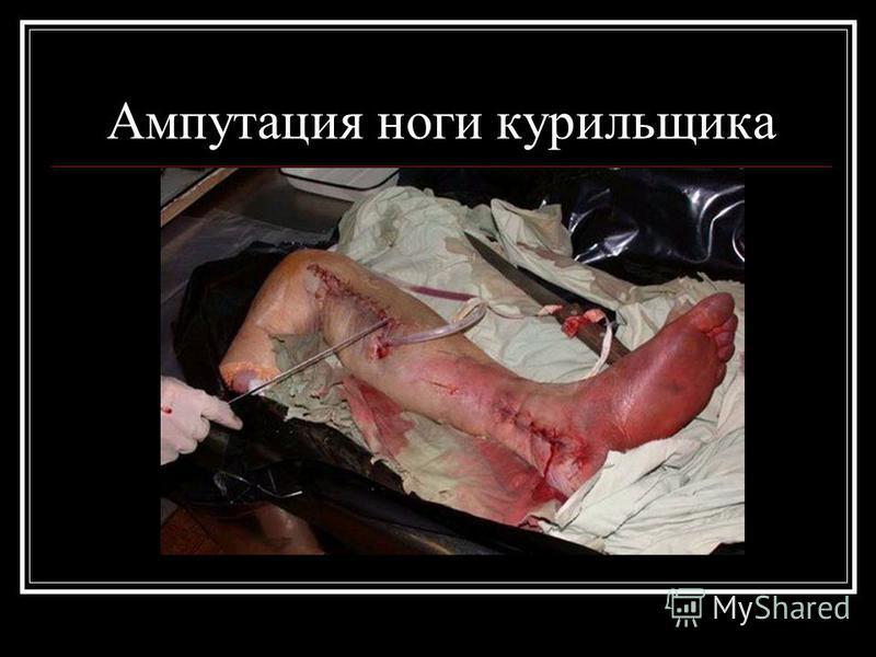 Ампутация ноги курильщика