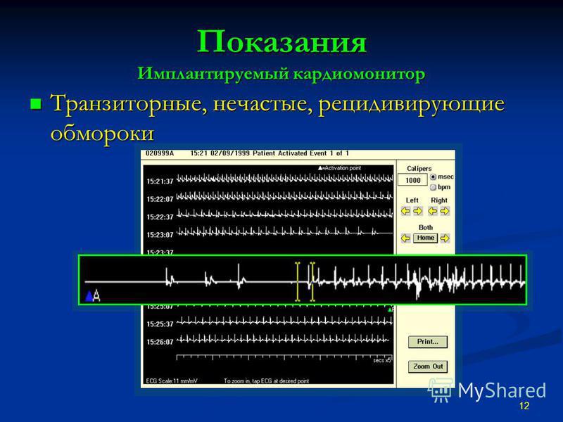 Показания Имплантируемый кардиомонитор Транзиторные, нечастые, рецидивирующие обмороки Транзиторные, нечастые, рецидивирующие обмороки 12