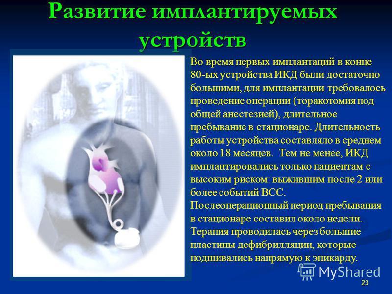 Развитие имплантируемых устройств Прошлое ИКД : ~10-12 лет назад Требовалась большая операция Требовалась большая операция Абдоминальные имплантаты Абдоминальные имплантаты Срединная стернотомия для подшивания пластин дефибрилляции на сердце Срединна