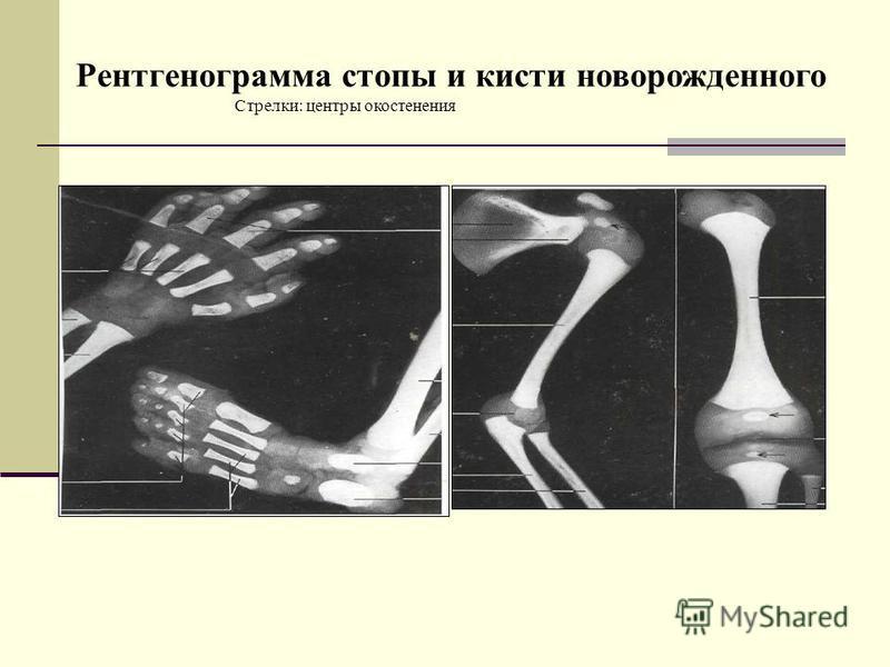Стрелки: центры окостенения Рентгенограмма стопы и кисти новорожденного