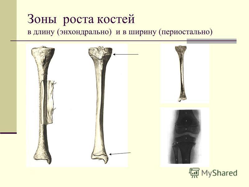 Зоны роста костей в длину (энхондральной) и в ширину (периостальной)