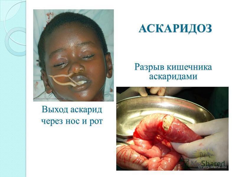 Выход аскарид через нос и рот Разрыв кишечника аскаридами АСКАРИДОЗ