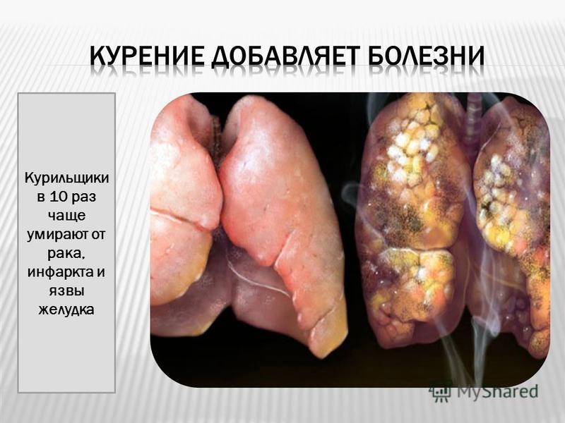 Курильщики в 10 раз чаще умирают от рака, инфаркта и язвы желудка