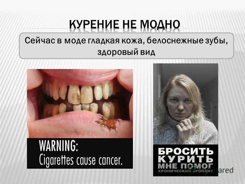 Сейчас в моде гладкая кожа, белоснежные зубы, здоровый вид