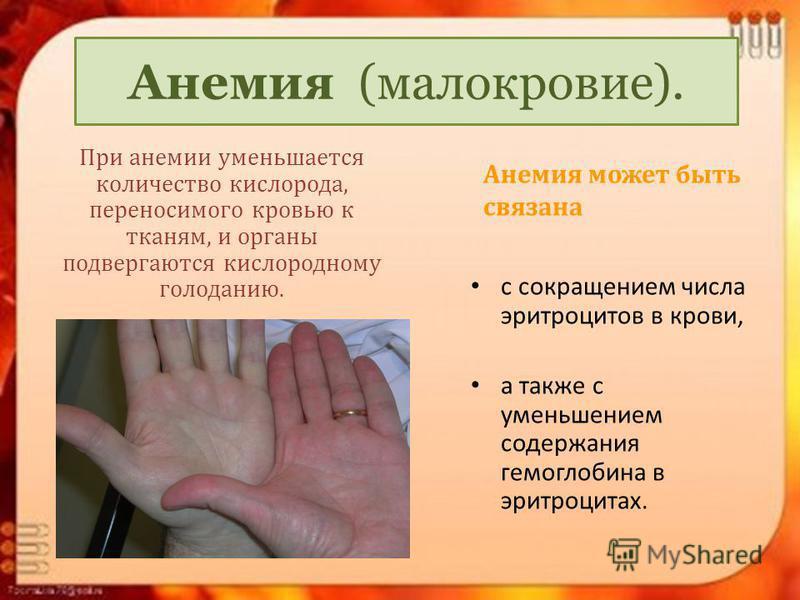 Анемия (малокровие). При анемии уменьшается количество кислорода, переносимого кровью к тканям, и органы подвергаются кислородному голоданию. Анемия может быть связана с сокращением числа эритроцитов в крови, а также с уменьшением содержания гемоглоб