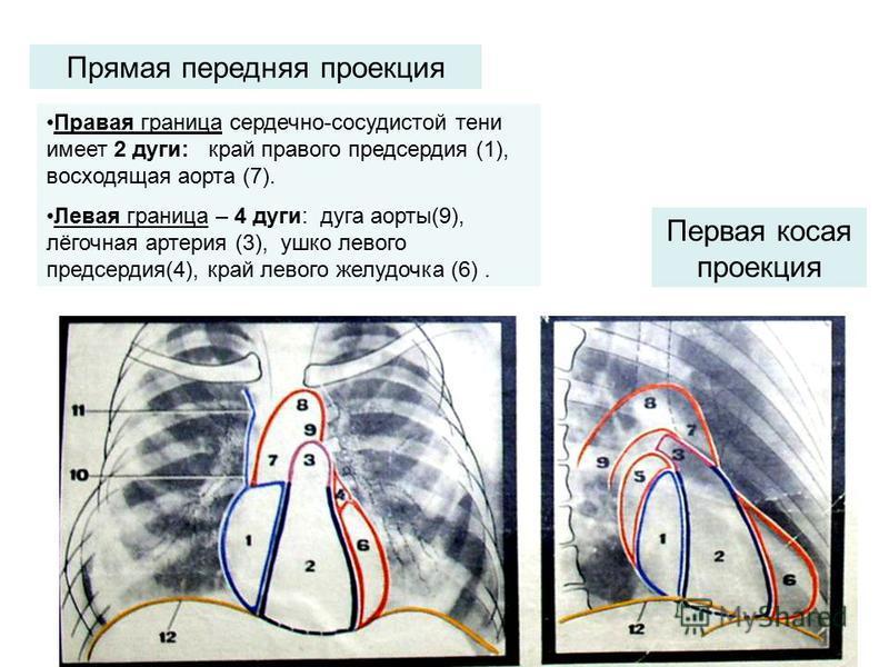 Прямая передняя проекция Первая косая проекция Правая граница сердечно-сосудистой тени имеет 2 дуги: край правого предсердия (1), восходящая аорта (7). Левая граница – 4 дуги: дуга аорты(9), лёгочная артерия (3), ушко левого предсердия(4), край левог