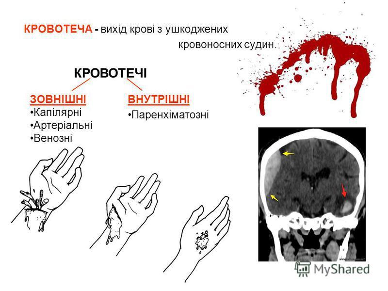 КРОВОТЕЧА - вихід крові з ушкоджених кровоносних судин. ВНУТРІШНІ Паренхіматозні ЗОВНІШНІ Капілярні Артеріальні Венозні КРОВОТЕЧІ