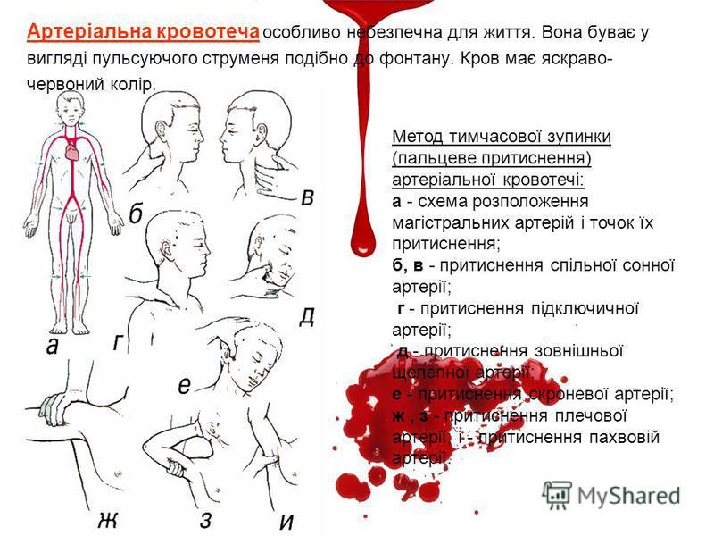 Артеріальна кровотеча особливо небезпечна для життя. Вона буває у вигляді пульсуючого струменя подібно до фонтану. Кров має яскраво- червоний колір. Метод тимчасової зупинки (пальцеве притиснення) артеріальної кровотечі: а - схема розположення магіст