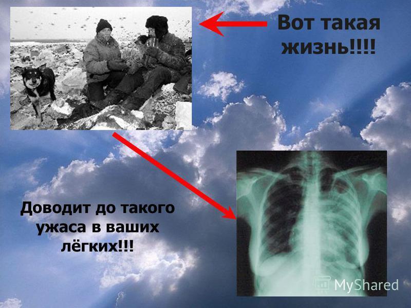 Вот такая жизнь!!!! Доводит до такого ужаса в ваших лёгких!!!