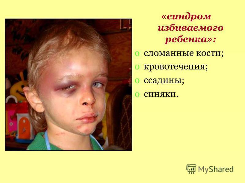 «синдром избиваемого ребенка»: oсломанные кости; oкровотечения; oссадины; oсиняки.