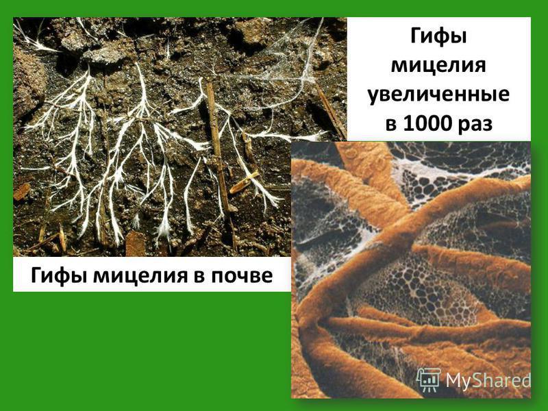 Гифы мицелия в почве Гифы мицелия увеличенные в 1000 раз