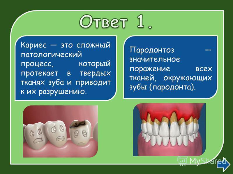 Кариес это сложный патологический процесс, который протекает в твердых тканях зуба и приводит к их разрушению. Пародонтоз значительное поражение всех тканей, окружающих зубы (пародонта).