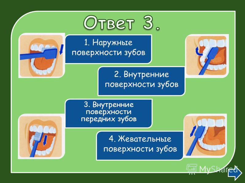 1. Наружные поверхности зубов 2. Внутренние поверхности зубов 3. Внутренние поверхности передних зубов 4. Жевательные поверхности зубов