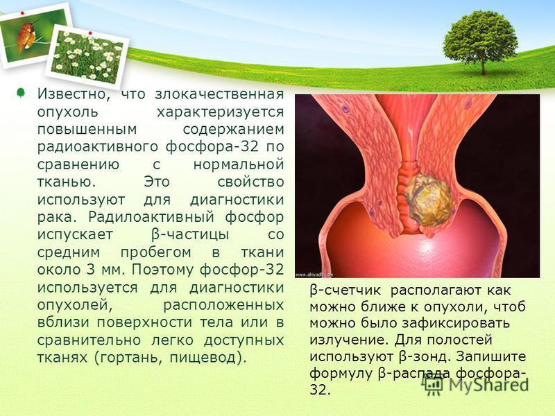 Известно, что злокачественная опухоль характеризуется повышенным содержанием радиоактивного фосфора-32 по сравнению с нормальной тканью. Это свойство используют для диагностики рака. Радилоактивный фосфор испускает β-частицы со средним пробегом в тка