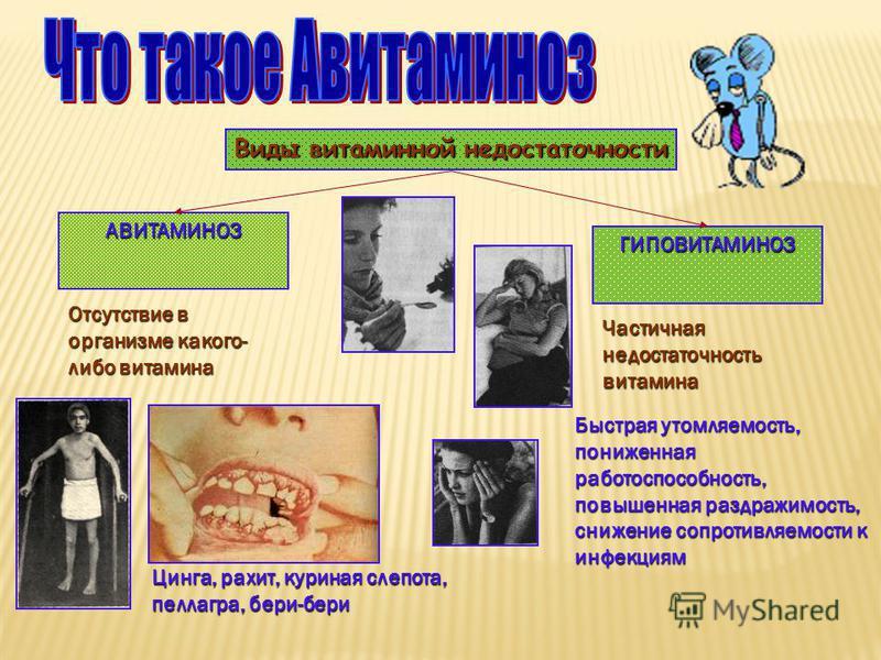 Виды витаминной недостаточности АВИТАМИНОЗ ГИПОВИТАМИНОЗ Отсутствие в организме какого- либо витамина Цинга, рахит, куриная слепота, пеллагра, бери-бери Частичная недостаточность витамина Быстрая утомляемость, пониженная работоспособность, повышенная