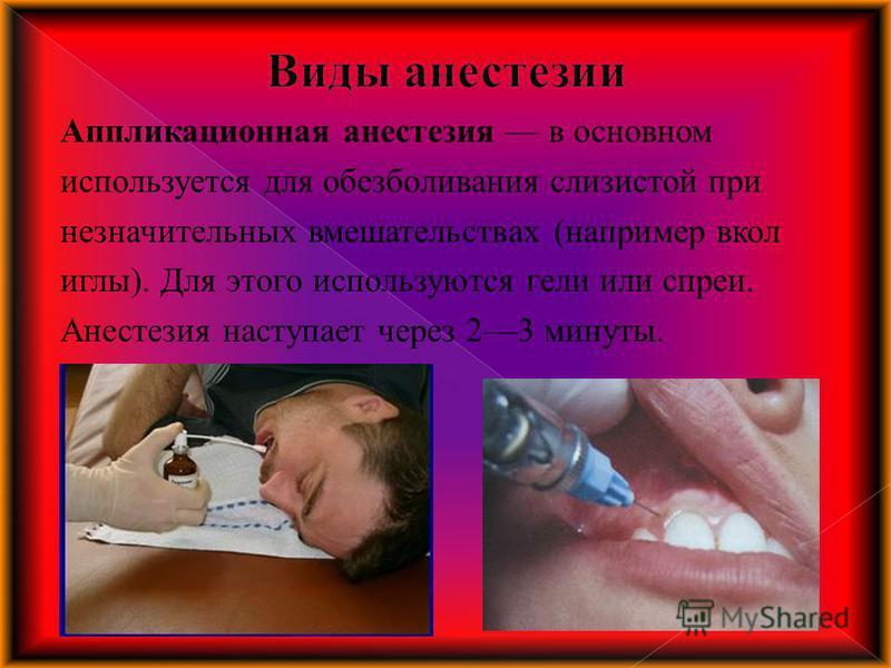 Аппликационная анестезия в основном используется для обезболивания слизистой при незначительных вмешательствах (например в кол иглы). Для этого используются гели или спреи. Анестезия наступает через 23 минуты.
