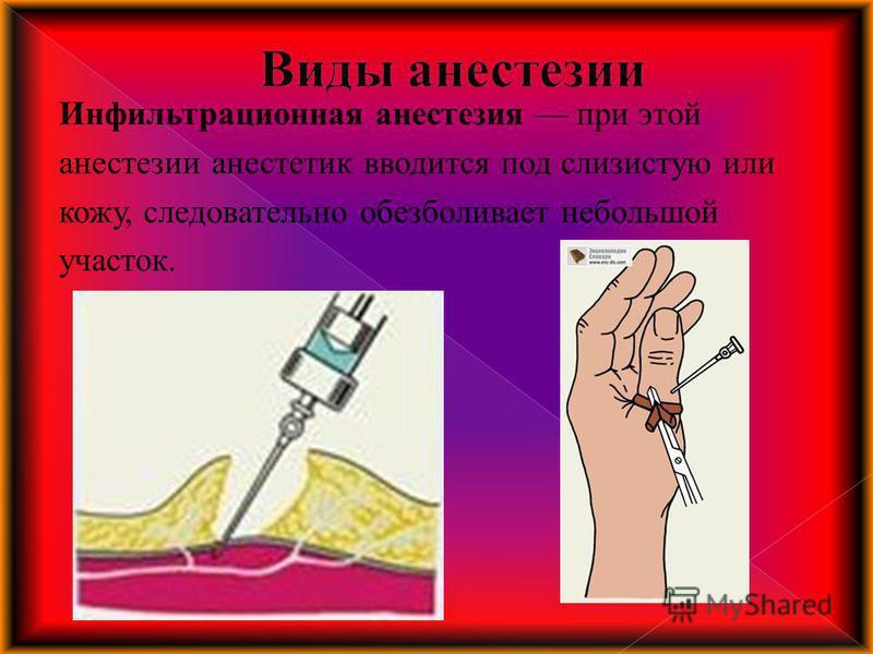 Инфильтрационная анестезия при этой анестезии анестетик вводится под слизистую или кожу, следовательно обезболивает небольшой участок.