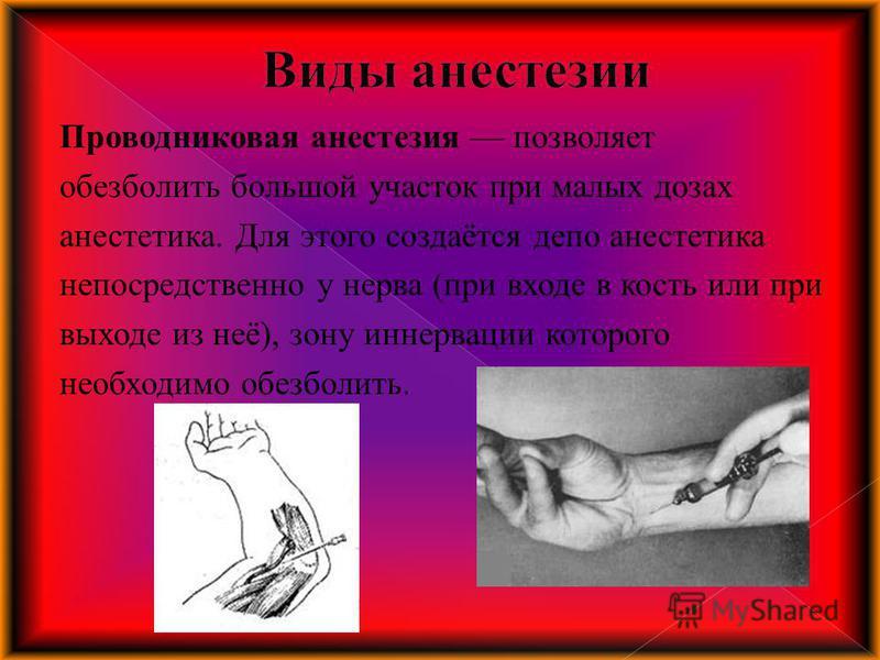 Проводниковая анестезия позволяет обезболить большой участок при малых дозах анестетика. Для этого создаётся депо анестетика непосредственно у нерва (при входе в кость или при выходе из неё), зону иннервации которого необходимо обезболить.