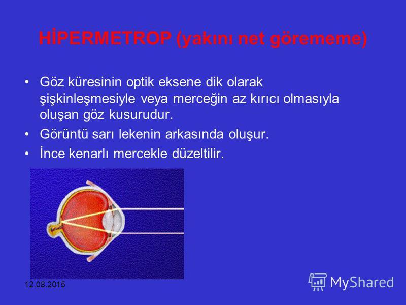12.08.2015 HİPERMETROP (yakını net görememe) Göz küresinin optik eksene dik olarak şişkinleşmesiyle veya merceğin az kırıcı olmasıyla oluşan göz kusurudur. Görüntü sarı lekenin arkasında oluşur. İnce kenarlı mercekle düzeltilir.