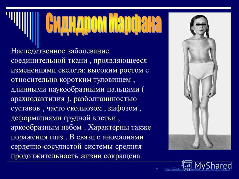 http://medarticle37.moslek.ru/articles/15184. htm Наследственное заболевание соединительной ткани, проявляющееся изменениями скелета: высоким ростом с относительно коротким туловищем, длинными паукообразными пальцами ( арахнодактилия ), разболтанннос
