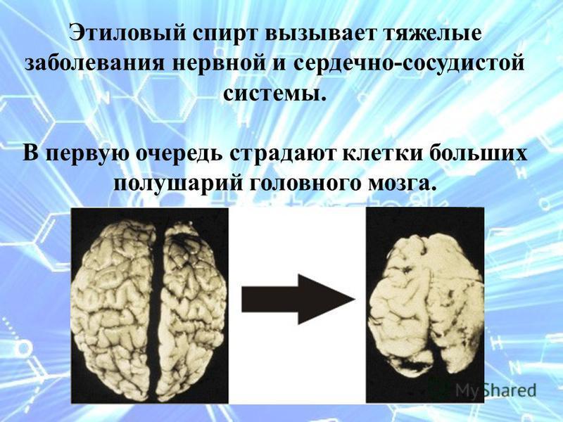 Этиловый спирт вызывает тяжелые заболевания нервной и сердечно-сосудистой системы. В первую очередь страдают клетки больших полушарий головного мозга.