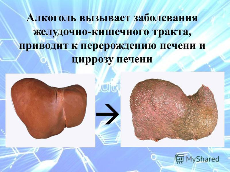 Алкоголь вызывает заболевания желудочно-кишечного тракта, приводит к перерождению печени и циррозу печени