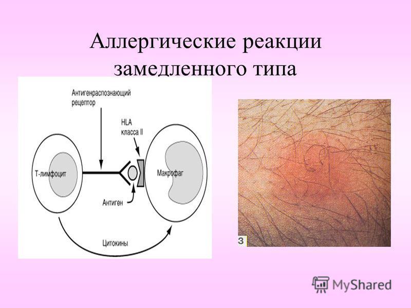 Аллергические реакции замедленного типа