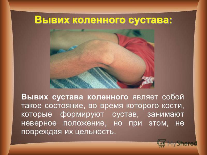 Вывих коленного сустава: Вывих сустава коленного являет собой такое состояние, во время которого кости, которые формируют сустав, занимают неверное положение, но при этом, не повреждая их цельность.