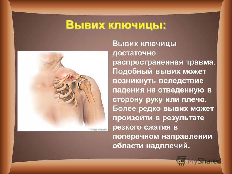 Вывих ключицы: Вывих ключицы достаточно распространенная травма. Подобный вывих может возникнуть вследствие падения на отведенную в сторону руку или плечо. Более редко вывих может произойти в результате резкого сжатия в поперечном направлении области
