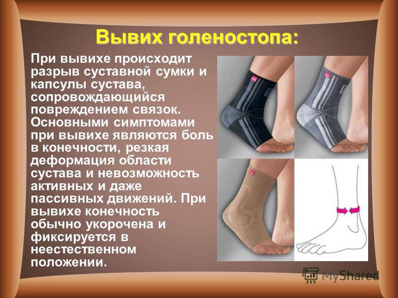 Вывих голеностопа: При вывихе происходит разрыв суставной сумки и капсулы сустава, сопровождающийся повреждением связок. Основными симптомами при вывихе являются боль в конечности, резкая деформация области сустава и невозможность активных и даже пас