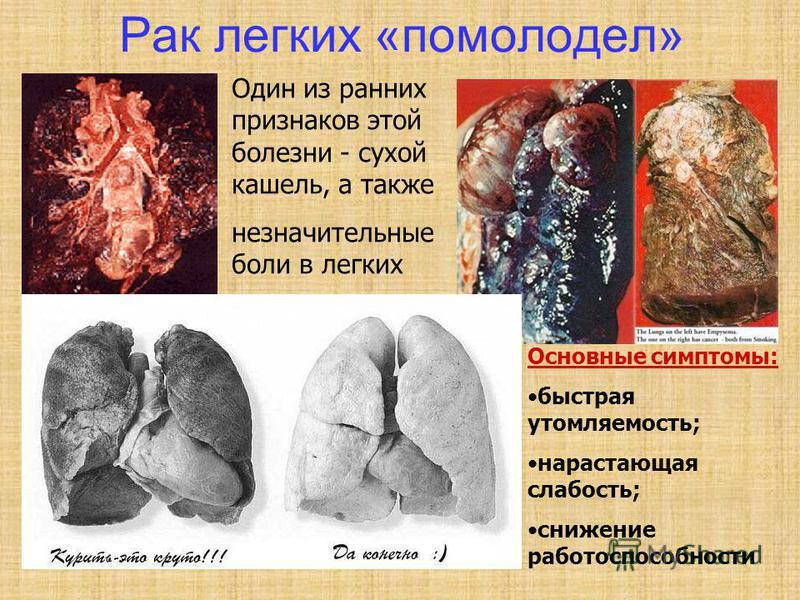 Рак легких «помолодел» Один из ранних признаков этой болезни - сухой кашель, а также незначительные боли в легких Основные симптомы: быстрая утомляемость; нарастающая слабость; снижение работоспособности