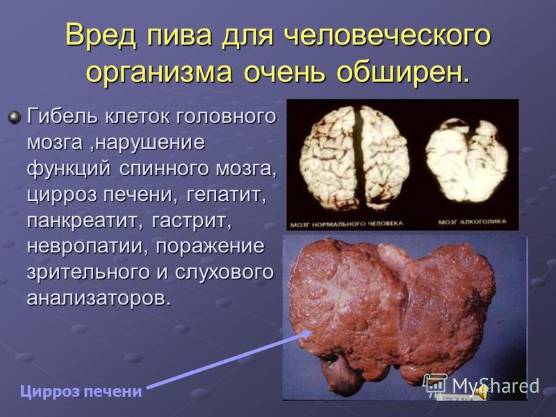 Вред пива для человеческого организма очень обширен. Гибель клеток головного мозга,нарушение функций спинного мозга, цирроз печени, гепатит, панкреатит, гастрит, невропатии, поражение зрительного и слухового анализаторов. Цирроз печени