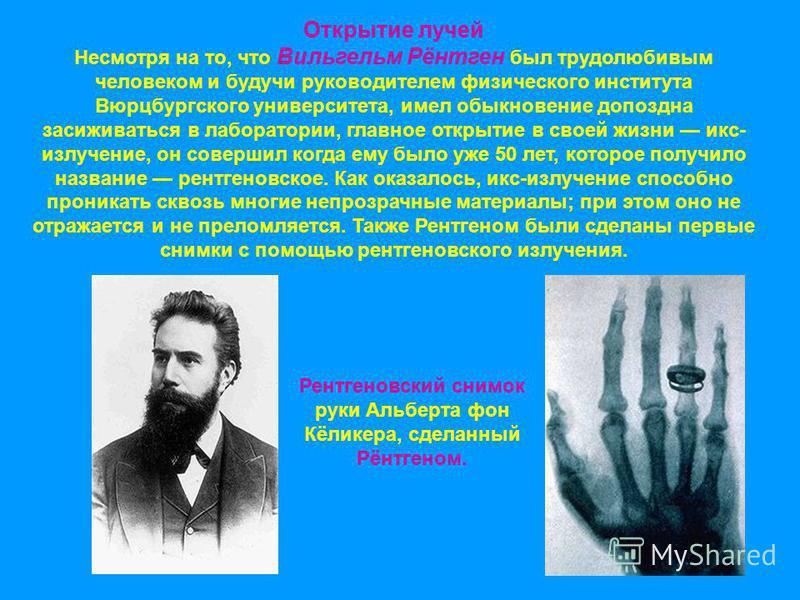 Рентгеновский снимок руки Альберта фон Кёликера, сделанный Рёнтгеном. Открытие лучей Несмотря на то, что Вильгельм Рёнтген был трудолюбивым человеком и будучи руководителем физического института Вюрцбургского университета, имел обыкновение допоздна з