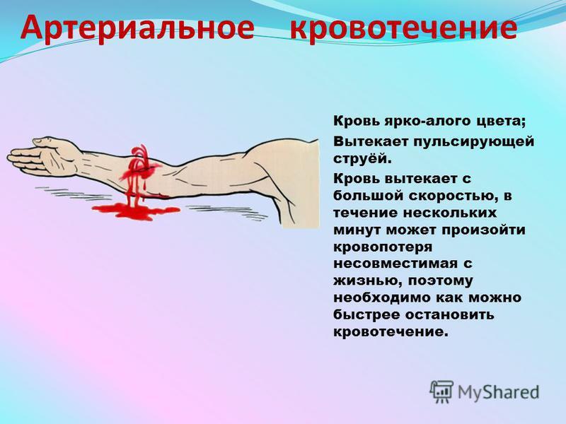Артериальное кровотечение Кровь ярко-алого цвета; Вытекает пульсирующей струёй. Кровь вытекает с большой скоростью, в течение нескольких минут может произойти кровопотеря несовместимая с жизнью, поэтому необходимо как можно быстрее остановить кровоте