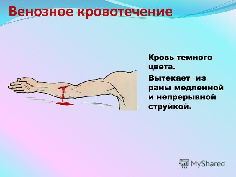 Венозное кровотечение Кровь темного цвета. Вытекает из раны медленной и непрерывной струйкой.