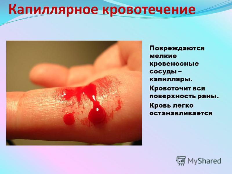 Капиллярное кровотечение Повреждаются мелкие кровеносные сосуды – капилляры. Кровоточит вся поверхность раны. Кровь легко останавливается.