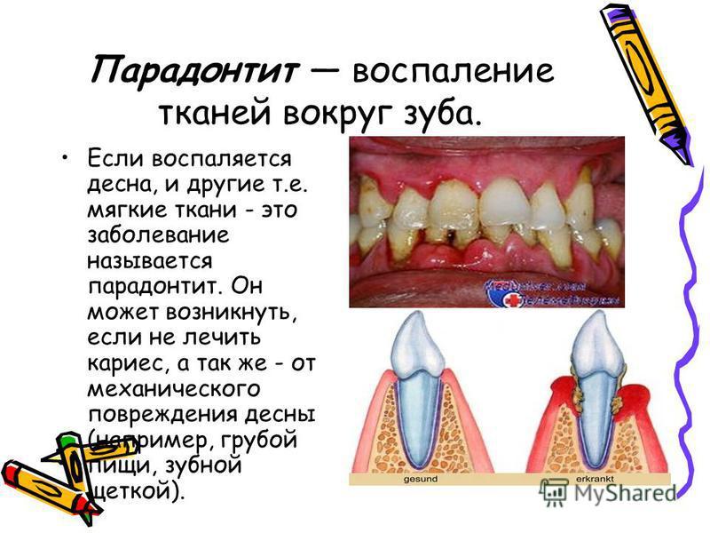 Парадонтит воспаление тканей вокруг зуба. Если воспаляется десна, и другие т.е. мягкие ткани - это заболевание называется пародонтит. Он может возникнуть, если не лечить кариес, а так же - от механического повреждения десны (например, грубой пищи, зу