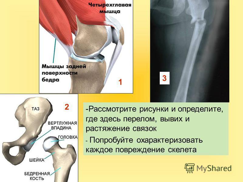 1 2 -Рассмотрите рисунки и определите, где здесь перелом, вывих и растяжение связок - Попробуйте охарактеризовать каждое повреждение скелета 3